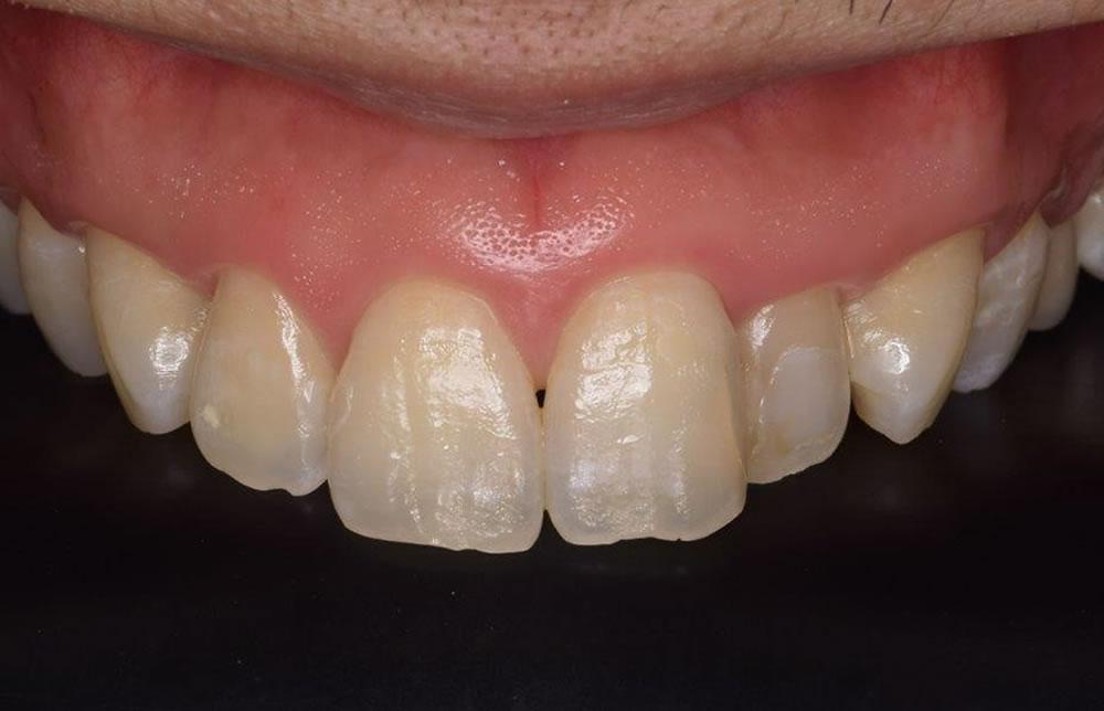 1年後の前歯の経過