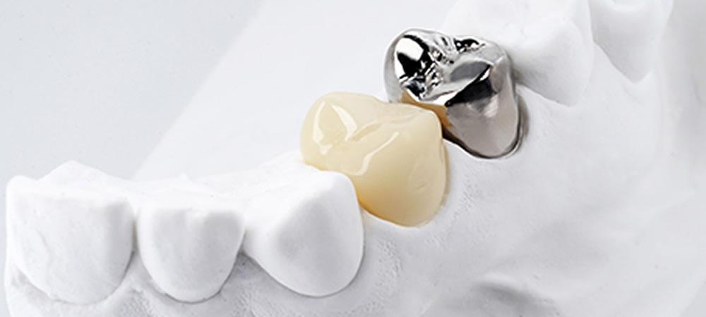 精密審美歯科