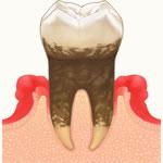 歯周病治療(専門医)