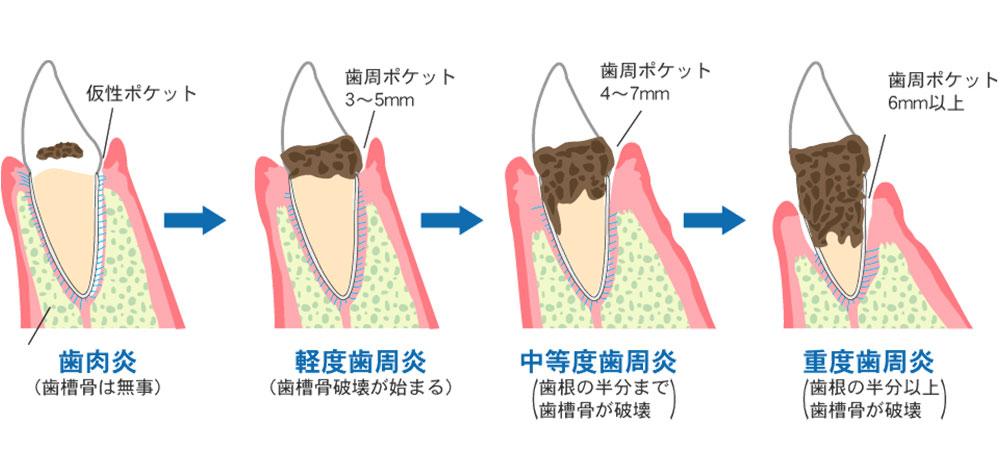 歯周病治療の方法